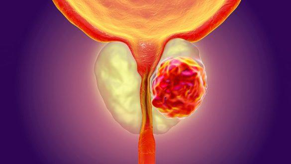 Prostate Cancer Treatment Hospital